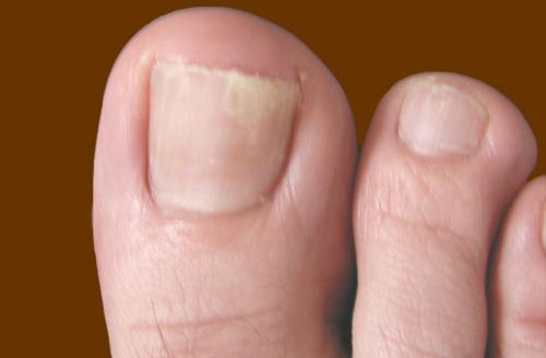 Как лечить грибок на ногтях