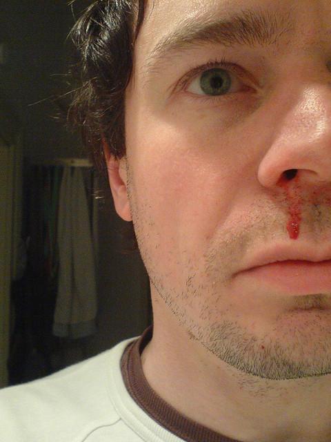 Из-за чего постоянно идет кровь из носа?