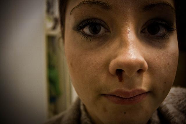 Из-за чего идет кровь из носа?