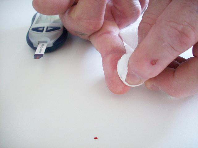 Цена анализа крови в 2016 году